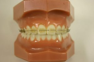 Braces Transparent