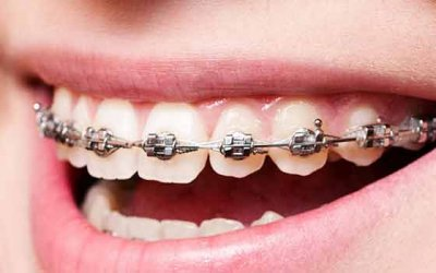 3 Ways to Care For Your Conventional Braces