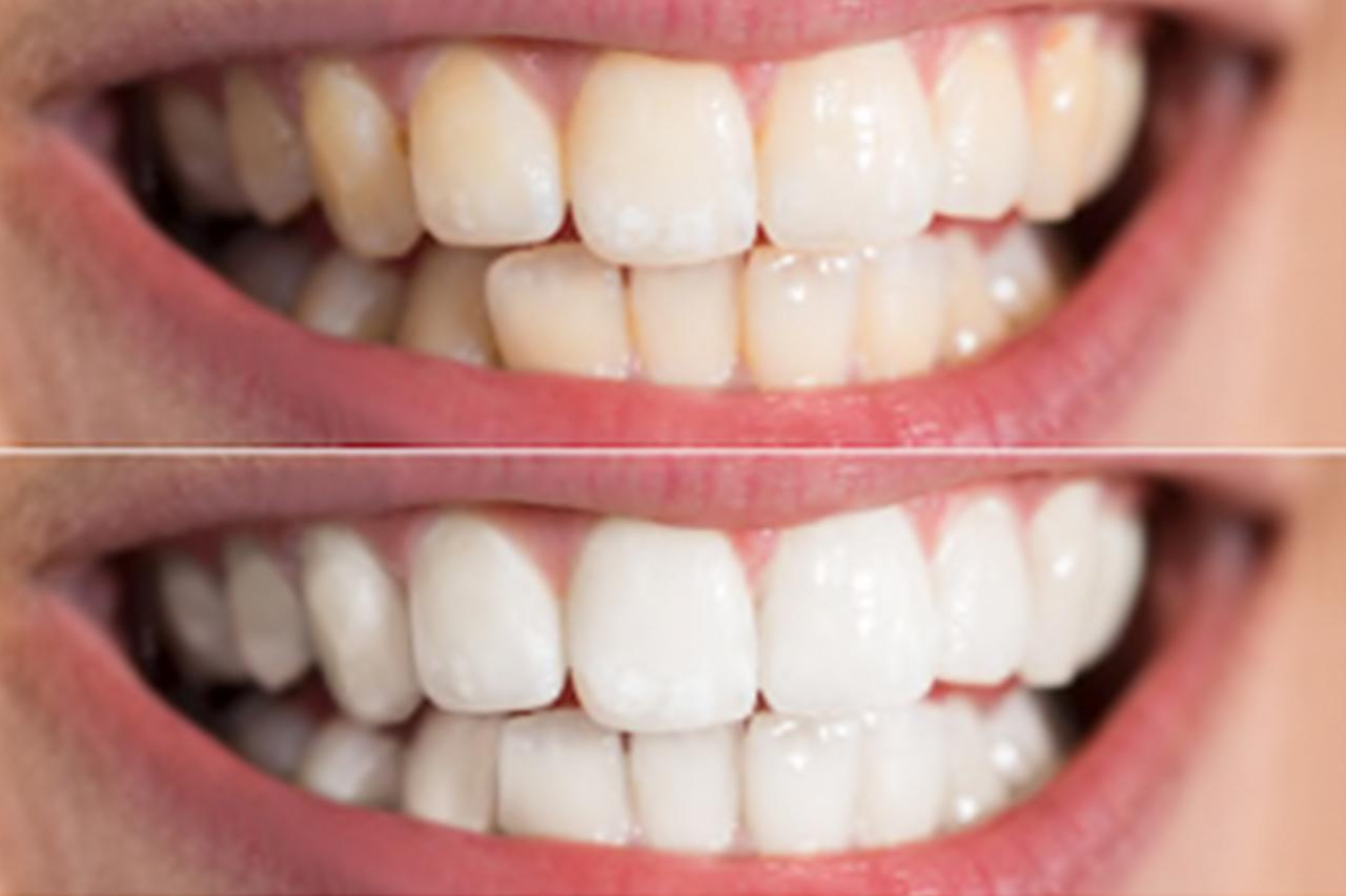 teeth whitening summary