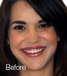 dental veneers before shot of girl one